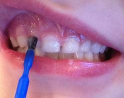 Fluoride Varnish Application